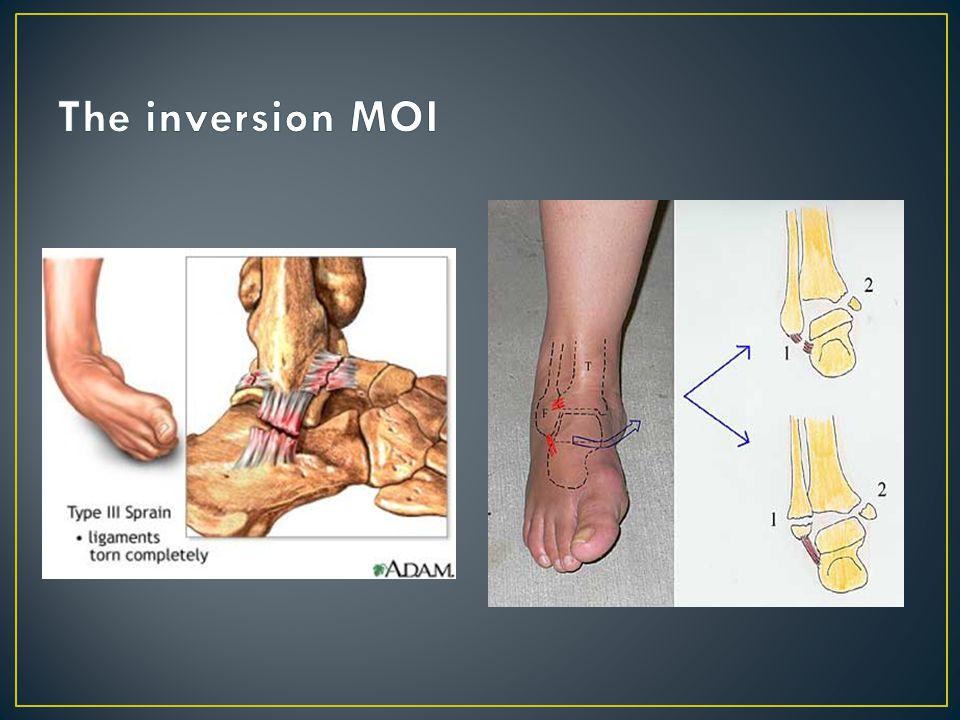 ATF lig.injured with the plantar flexion/inversion MOI Calcaneofibular lig.
