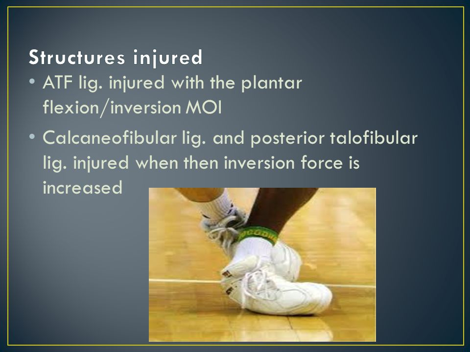 3 rd degree Lateral Ankle sprain