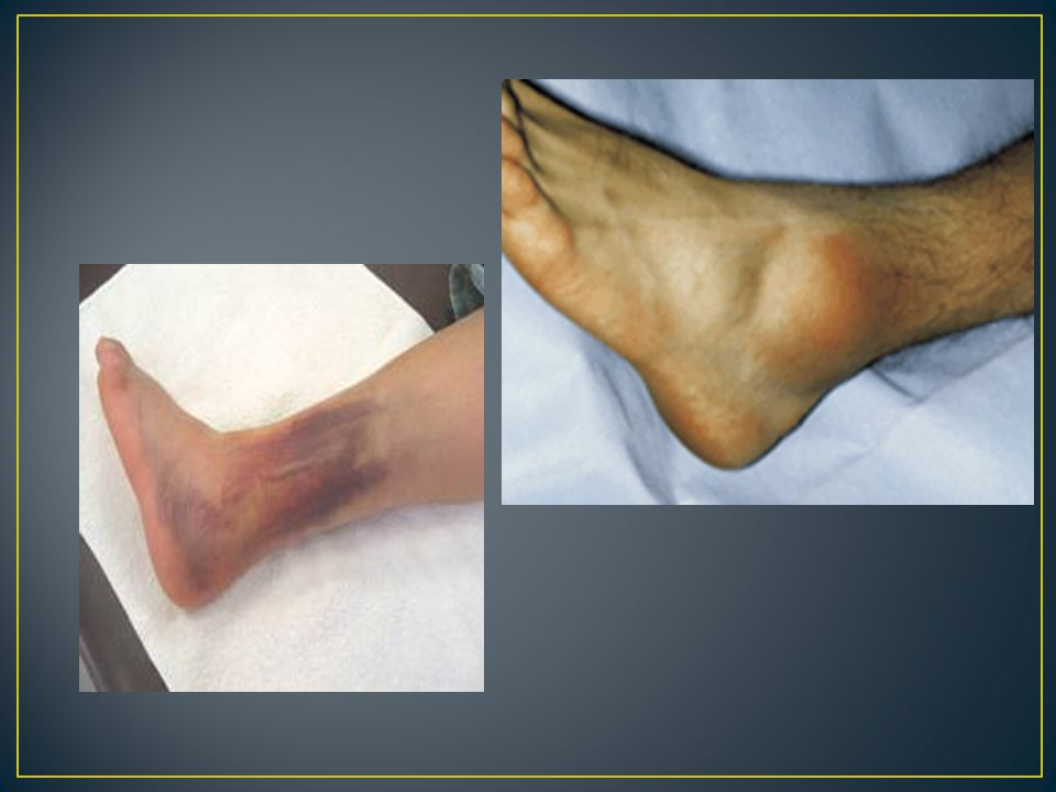 S/S: Pain, Swelling, discoloration, Pt.