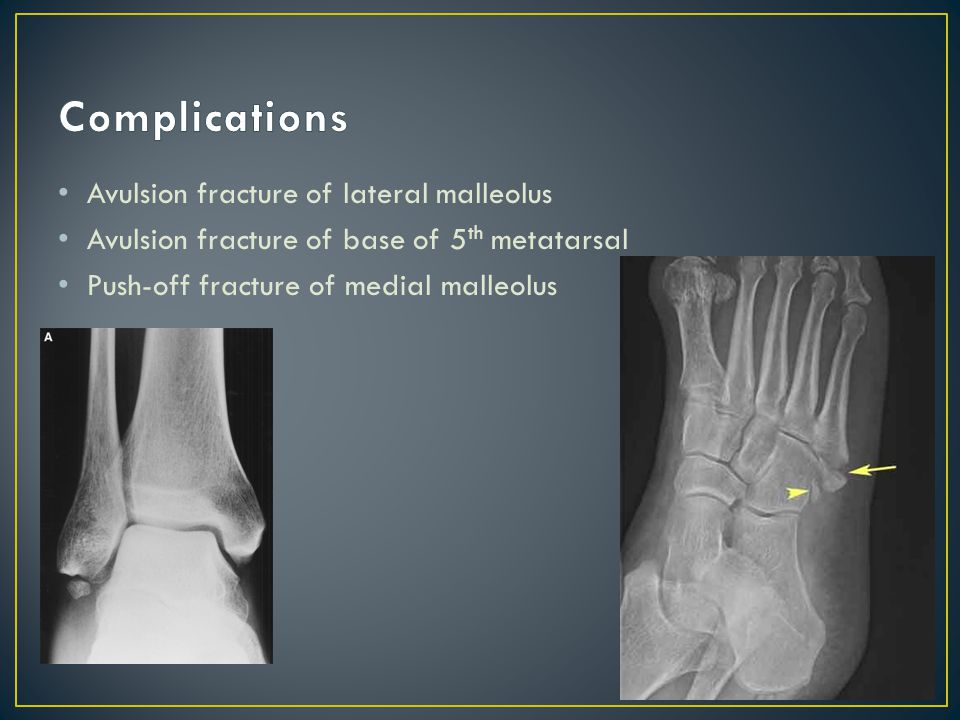Less common due to bony structure of ankle Deltoid ligament damage (any or all 4 portions )