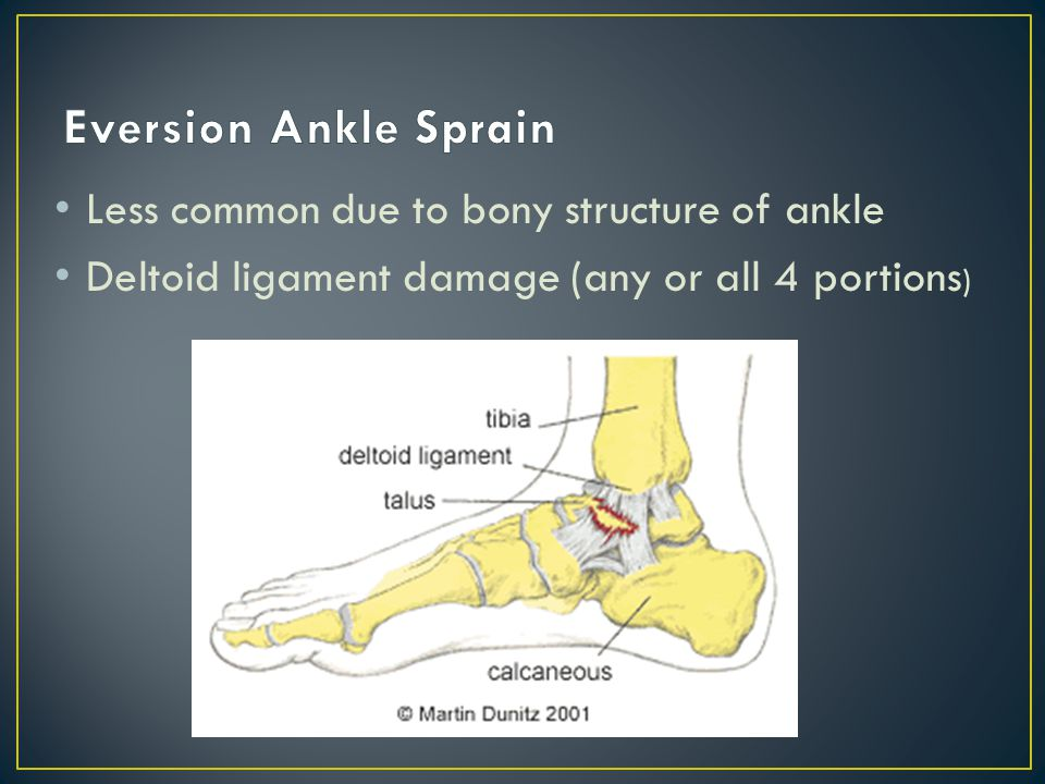 MOI: ankle everts due to---- someone/something landing on the lateral aspect of leg during weight bearing or--- S/S: Pain, swelling, discoloration, joint instability, joint stiffness, decreased ROM, Pt.