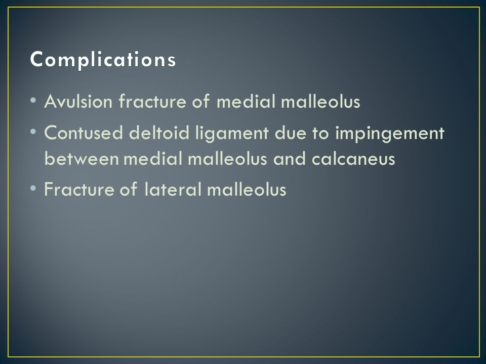 Also called syndesmotic Anterior and posterior tibiofibular ligaments damage