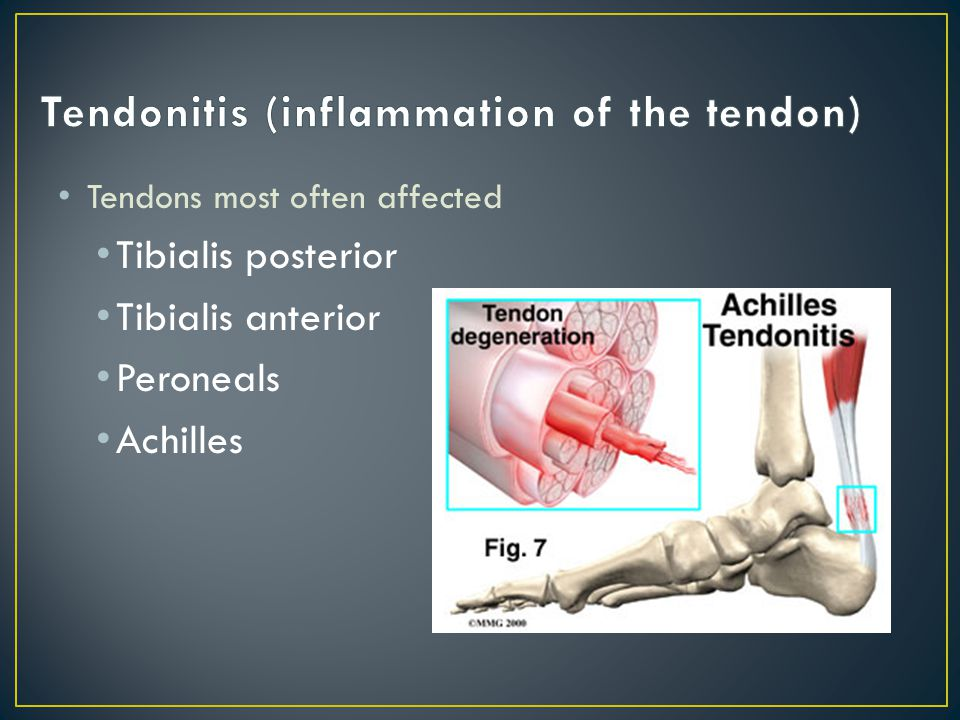 MOI: faulty foot biomechanics Inappropriate or poor/worn footwear Acute trauma to tendon Tightness of heel cord Training errors Excessive running, jumping, hills