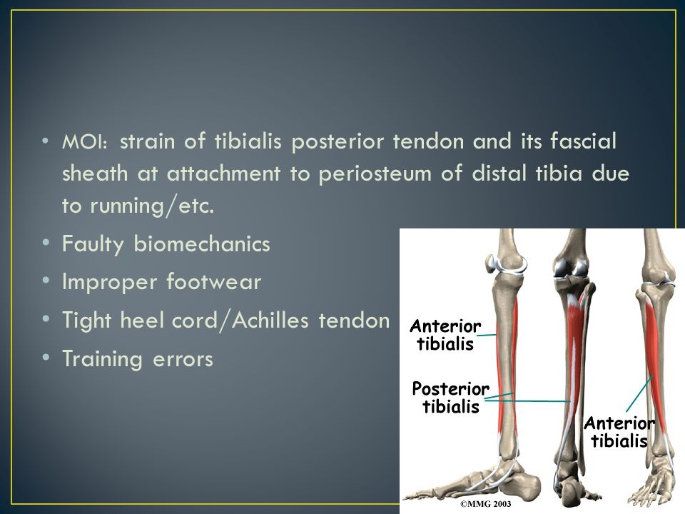 S/S: diffuse pain along the distal tibia (2/3) medially Pt.