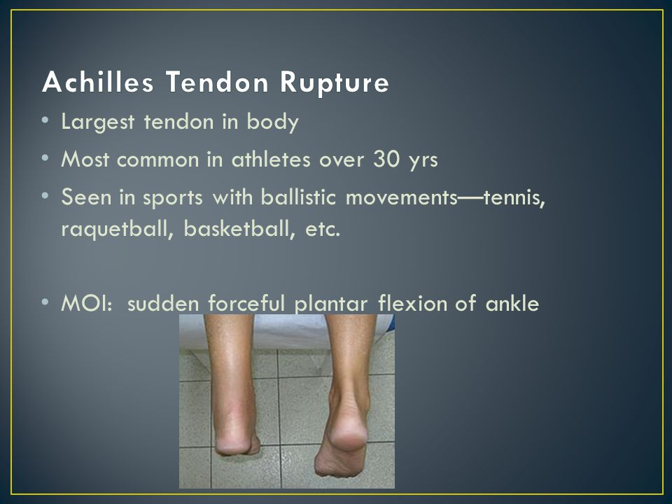 S/S: felt/heard a pop at back of leg (sounds like a twig snap or gun shot) Felt as is someone hit them with a rock Pain with plantar flexion/dorsiflexion Inability to plantar flex Palpable/visible defect at the achilles tendon + Thompson test