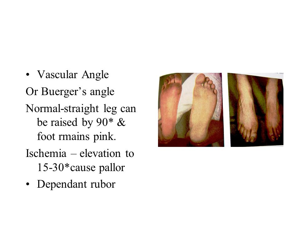 Venous Filling Normal – veins of foot are full of blood Ischemia – veins are collapsed & looks like pale blue gutters - Guttering of veins