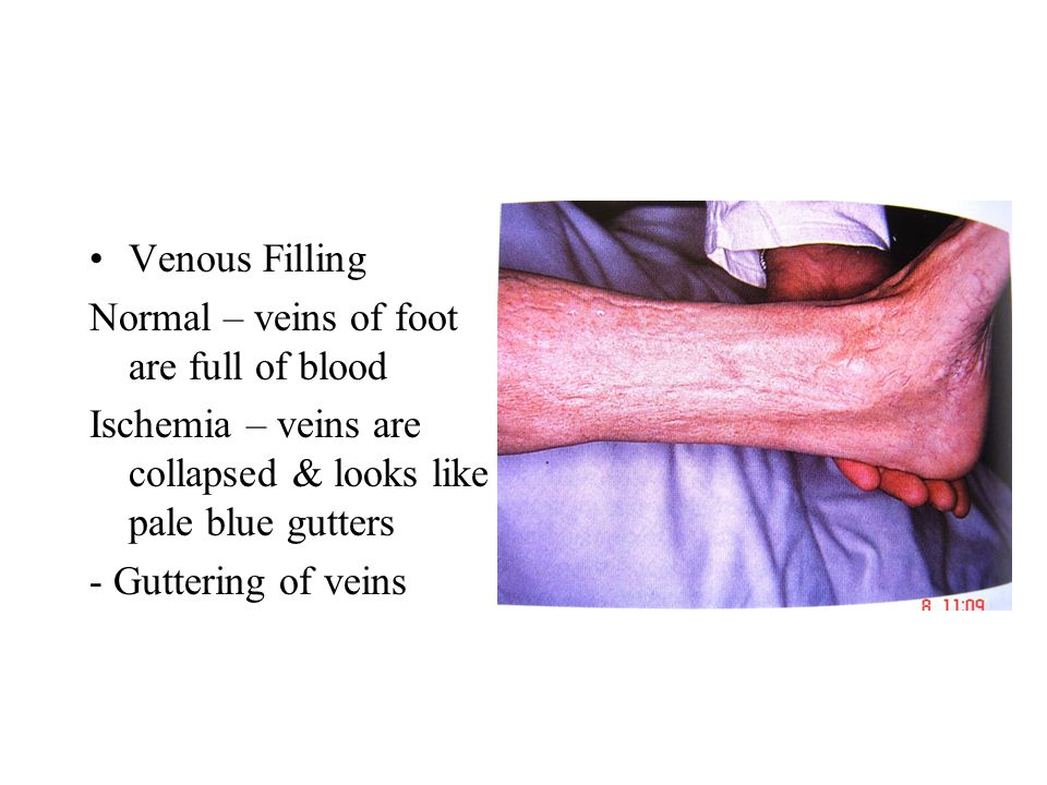 Palpation Temperature which foot – warm/cold.