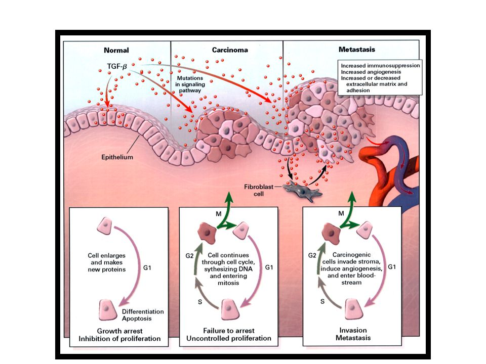 Human Diseases with Alterations in the TGF-  Signaling Pathway