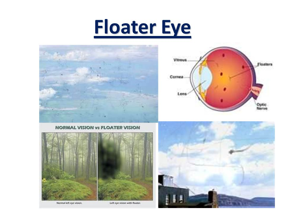 35% of those age 60& above suffer from Floater Eye Effectiveness of ionSpec for Floater Eye
