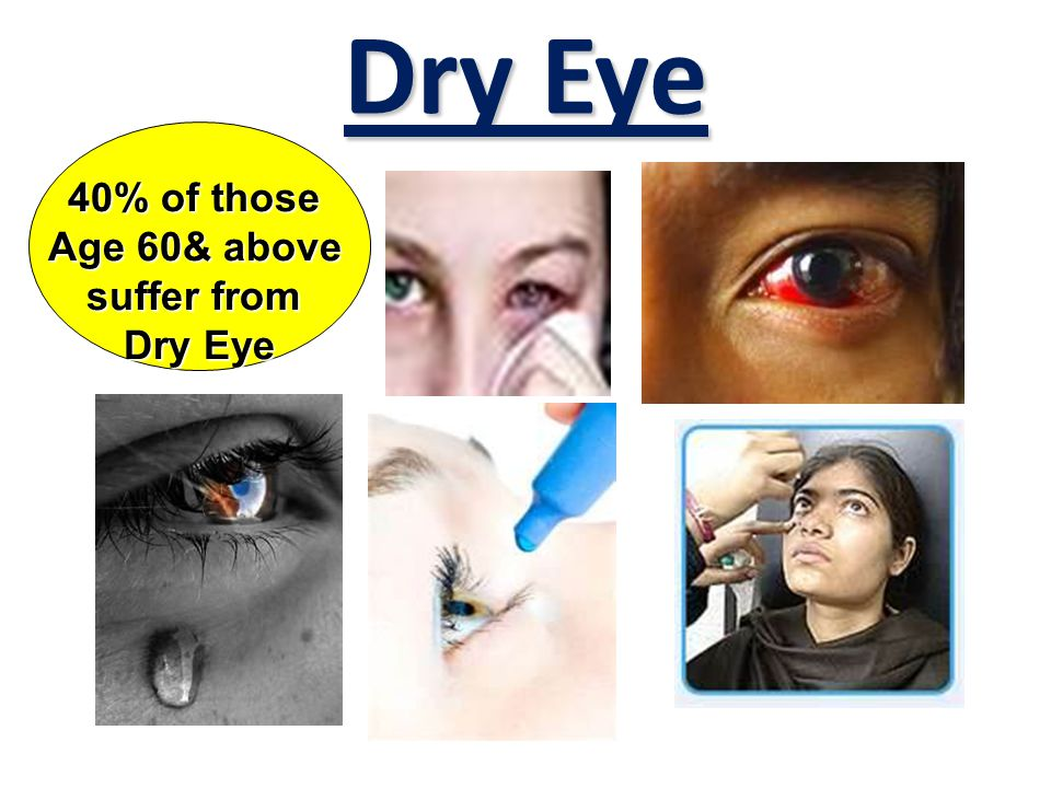 What are the causes for Dry Eye ? Work with Computer 长时间面对电脑 Play iPhone, iPod 长时间面对平板电脑 Computer Games 长时间玩电动游戏 Non-stop Watching TV 长时间观看电视