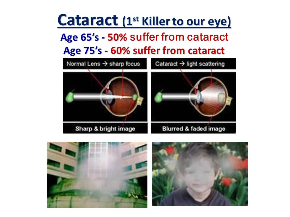 Glaucoma (2 nd Killer to our eye)