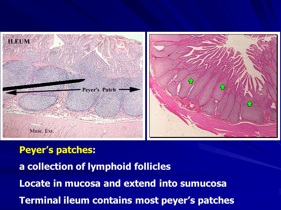 1 st Stage (First week): Hyperplasia of peyer's pathes The phagocytes in Peyer's patches of the ileum and the solitary lymph follicles are proliferation and Hyperplasia Macroscopilly Projected on the mucosal surface Microscopilly Typhoid granuloma with a large number of typhoid cells can be seen obviously Clinical Blood culture † † † † Stool culture -