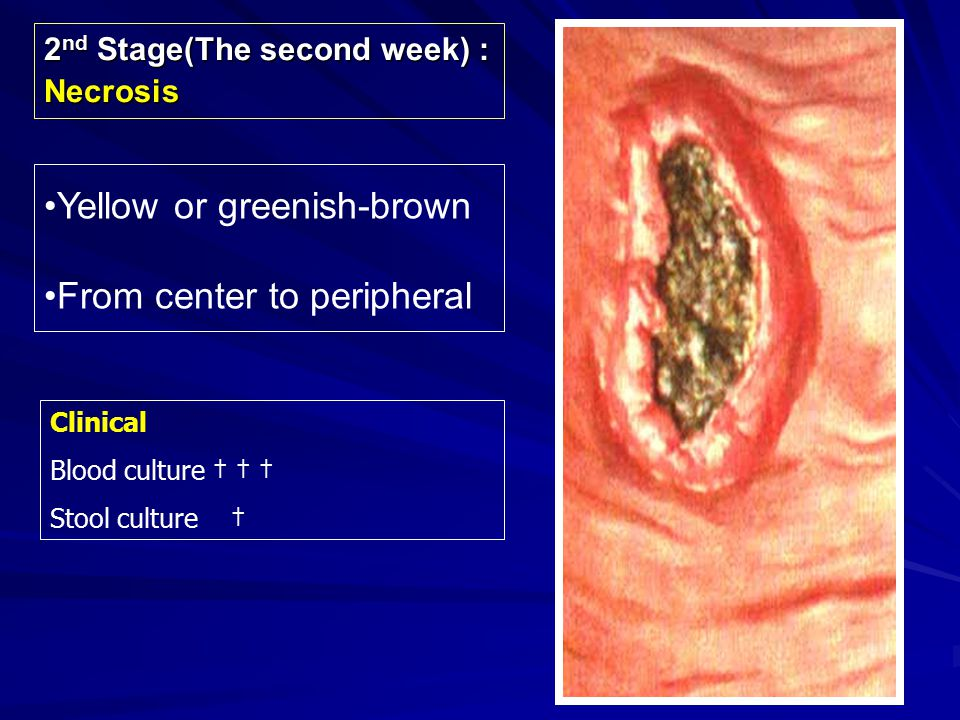 Clinical Stool culture ††† Widal reaction ††† 3 rd Stage(The third week) : Ulceration Rounded or oval, deep ulcer,which long axis is in the direction of the long axis of the bowel (Longitudinal ulcer-typical finding of typhoid by macroscopically).