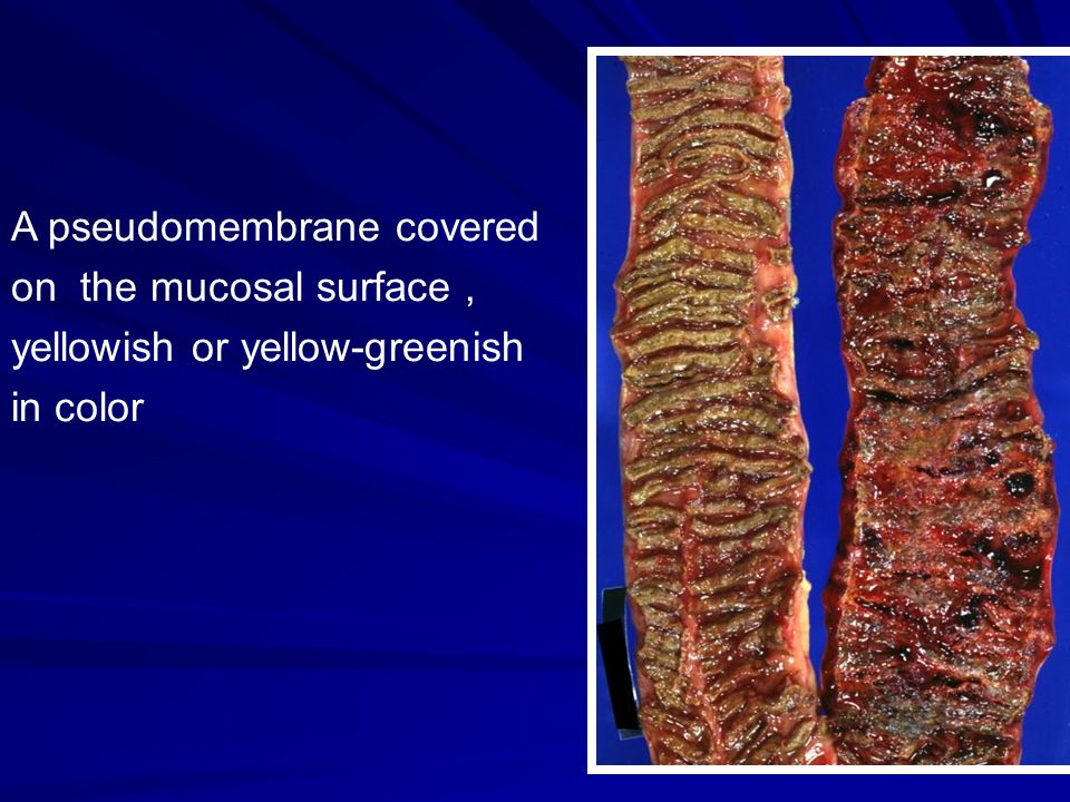 Plaques of yellow fibrin and inflammatory debris are adherent to a reddened colon mucosa..