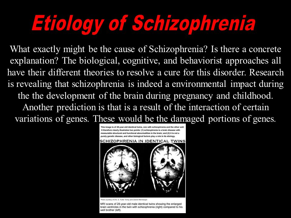 The Behaviourist Approach interprets abnormal behavior as simply maladaptive learning. From this, the behaviourist approach would then say that Schizophrenia is not regarded at all differently to other forms of abnormal behaviour.