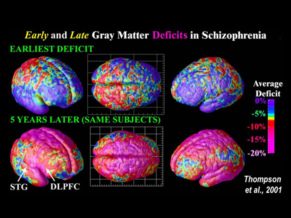 Biological Perspective Dopamine hypothesis – theory that schizophrenia is related to over activity in neural pathways which depend on dopamine as a neurotransmitter.