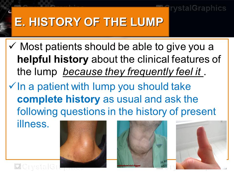 1.When was the lump first noticed .( e.g.