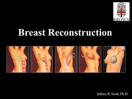 Breast Reconstruction Jeffrey R. Scott, Ph.D.. Definition Breast Two milk-secreting, glandular organs on the chest of a woman; the human mammary gland.