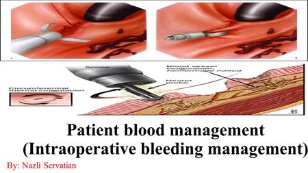 Patient blood management (Intraoperative bleeding management) By: Nazli Servatian.