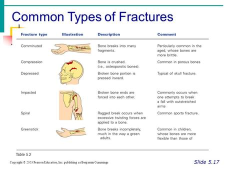 Common Types of Fractures Slide 5.17 Copyright © 2003 Pearson Education, Inc. publishing as Benjamin Cummings Table 5.2.