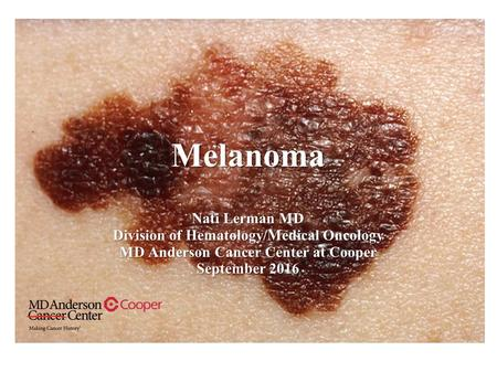 Melanoma Nati Lerman MD Division of Hematology/Medical Oncology MD Anderson Cancer Center at Cooper September 2016.