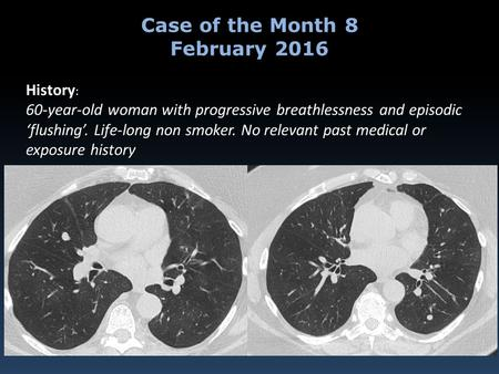 History : 60-year-old woman with progressive breathlessness and episodic 'flushing'. Life-long non smoker. No relevant past medical or exposure history.