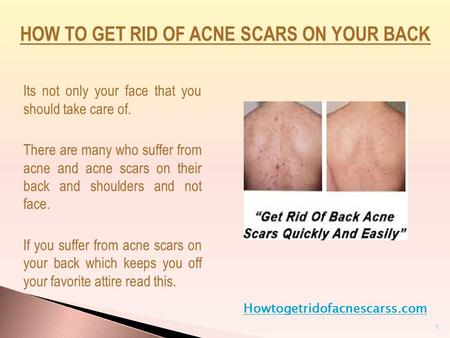 Its not only your face that you should take care of. There are many who suffer from acne and acne scars on their back and shoulders and not face. If you.
