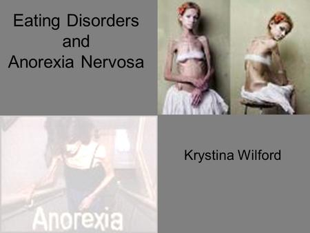 Eating Disorders and Anorexia Nervosa Krystina Wilford.