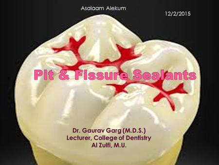 Asalaam Alekum 12/2/2015.  At the end of lecture students should know:  Introduction & definition of Dental (Pit & fissure) sealants  Role of sealants.