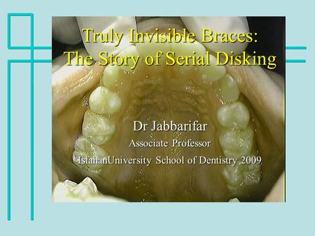 Truly Invisible Braces: The Story of Serial Disking Dr Jabbarifar Associate Professor IsfahanUniversity School of Dentistry 2009.