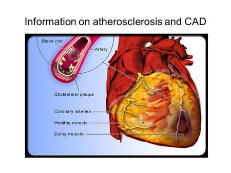Information on atherosclerosis and CAD. How is Coronary Artery Disease Diagnosed?