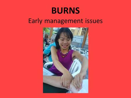 BURNS Early management issues Epidemiology Approx 135 000 total burn injuries in Oz in 2001. 2% of all injury hospitalisations 6000 children to A&E with.