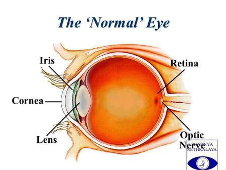 PRADNYA NETHRALAYA Lens Cornea Iris Optic Nerve Retina The Normal Eye.