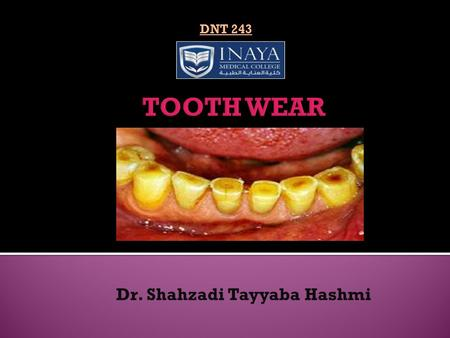 Dr. Shahzadi Tayyaba Hashmi DNT 243. Definition: Tooth wear is defined as loss of tooth tissue due to causes other than caries Types: Physiological (