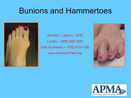Bunions and Hammertoes Richard I. Lebovic, DPM Linden – (908) 925-1500 East Brunswick – (732) 613-1166 www.AccentonFeet.org.