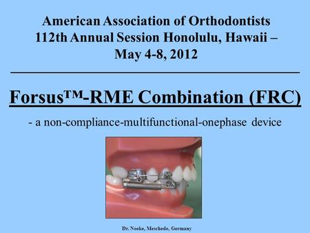 American Association of Orthodontists 112th Annual Session Honolulu, Hawaii – May 4-8, 2012 Forsus™-RME Combination (FRC) - a non-compliance-multifunctional-onephase.