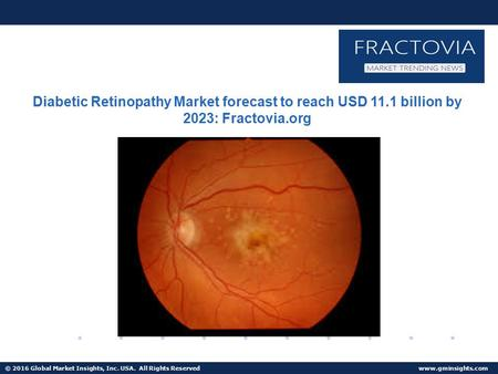 © 2016 Global Market Insights, Inc. USA. All Rights Reserved  Non-Proliferative Diabetic Retinopathy Market size to surpass USD 7.5 billion by 2023