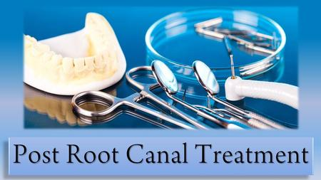 Post Root Canal Treatment