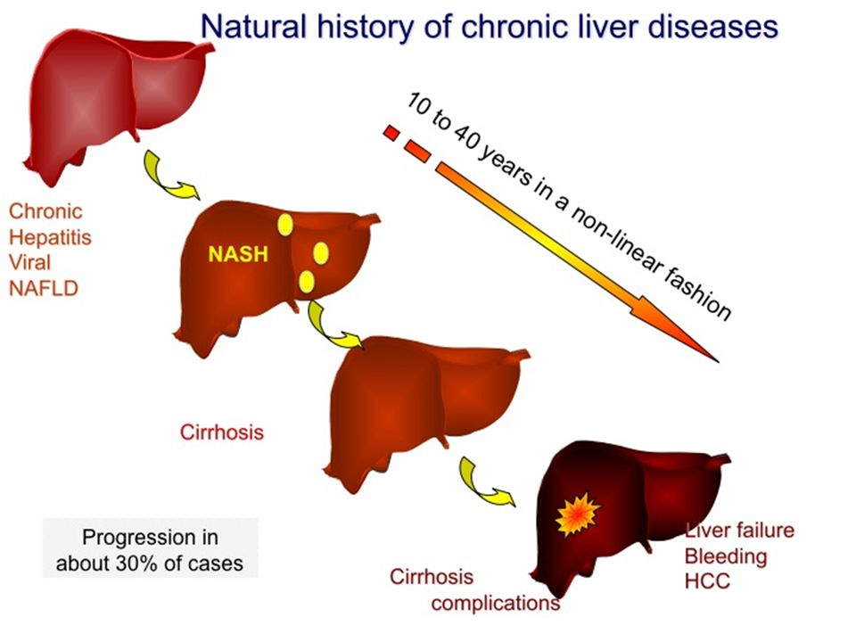 P=0.006 P=NS P=0.01 Liver-related (2.8% vs.0.2%, P.04) Cardiovascular diseases (15.5% vs.