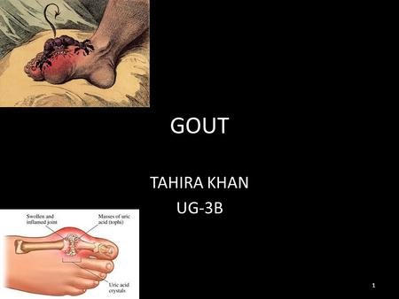 GOUT TAHIRA KHAN UG-3B 1. INTRODUCTION: GOUT is known as the disease of kings and rich mans disease. Gout (also known as podagra when it involves the.