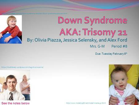 down syndrome case study