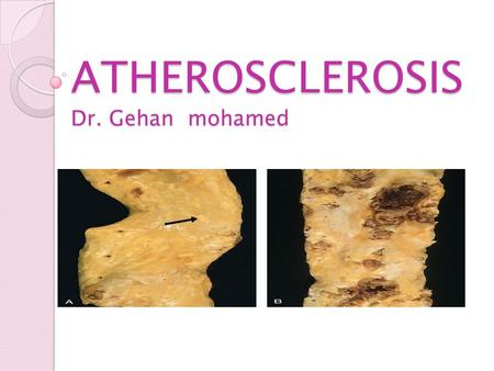 ATHEROSCLEROSIS Dr. Gehan mohamed. Learning objectives Atherosclerosis Definition of arteriosclerosis and mention the three patterns of it? Mention definition,