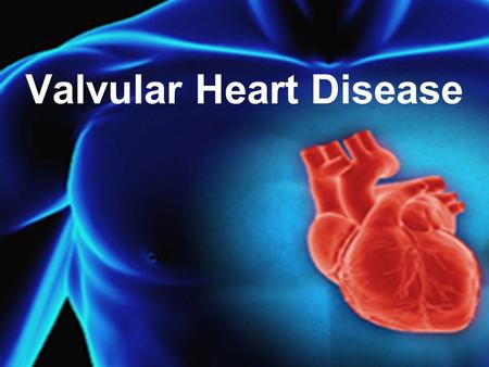 Valvular Heart Disease. physiology Spectrum of VHD Aortic Valve Mitral Valve Tricuspid Valve Pulmonic Valve.