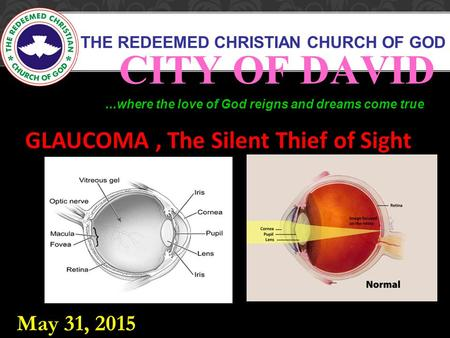 THE REDEEMED CHRISTIAN CHURCH OF GOD CITY OF DAVID...where the love of God reigns and dreams come true GLAUCOMA, The Silent Thief of Sight May 31, 2015.