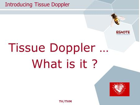 TV/TVM Tissue Doppler … Introducing Tissue Doppler What is it ?
