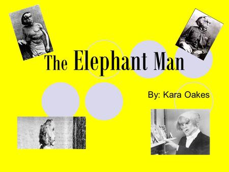 The Elephant Man By: Kara Oakes. Its called Neurofibromatosis Its a bunch of deformities and overgrowths on one side of the body. I.