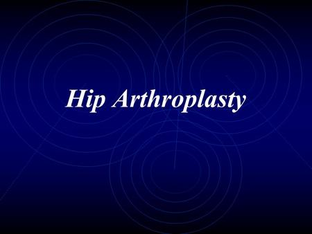 Hip Arthroplasty.
