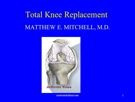 Mattmitchellmd.com1 Total Knee Replacement MATTHEW E. MITCHELL, M.D.