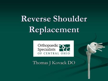 Reverse Shoulder Replacement Thomas J Kovack DO. Reverse Shoulder Replacement.
