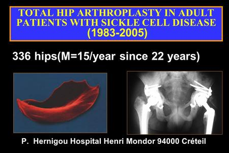TOTAL HIP ARTHROPLASTY IN ADULT PATIENTS WITH SICKLE CELL DISEASE (1983-2005) P. Hernigou Hospital Henri Mondor 94000 Créteil 336 hips(M=15/year since.